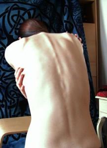 Inflamación Crónica : al borde de la Tumba