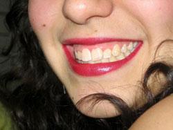 Los beneficios de los implantes dentales