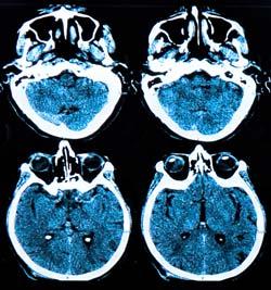 La detección precoz de la enfermedad de alzheimer