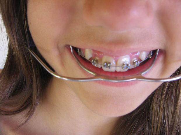 Los peligros de la enfermedad de las encías