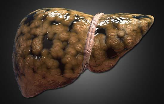 hígado graso