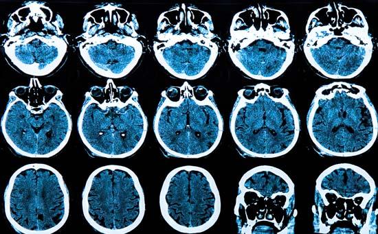 prevenir la enfermedad de Alzheimer